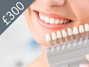 Enlighten Teeth Whitening Watford